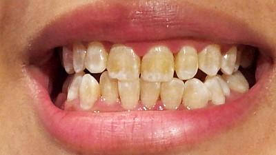 Medicamentele îngălbenesc dinții copiilor! Care sunt recomandările stomatologilor