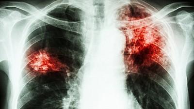 Screening gratuit la plămâni, în Capitală! Oamenii au făcut cozi la centrul mobil de radiografie