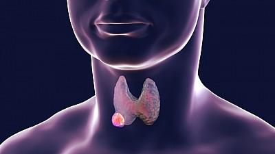 Tratamentul nodulilor tiroidieni: Sfaturi de la specialiștii Eugeniu Condratchi și Elena Mornealo (VIDEO)